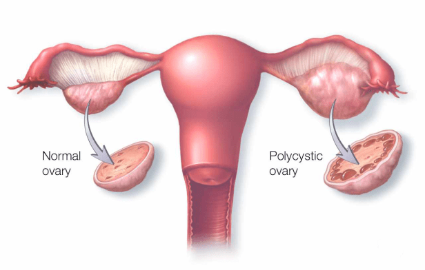 poli systic ovary syndrome