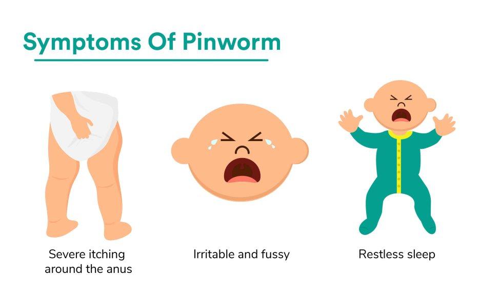 Pinworm Symptoms in Babies