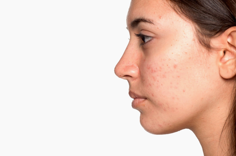 Fight And Treat Acne