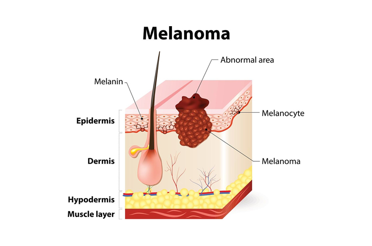 The Presence Of Melanin In Hair Follicles
