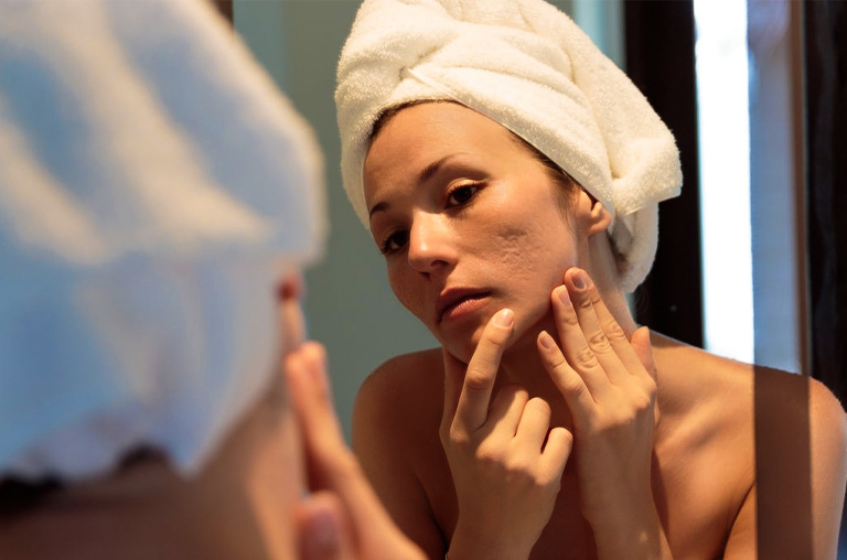 Dermatological Issues