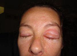 Soraya's Autoimmune Disease Symptoms