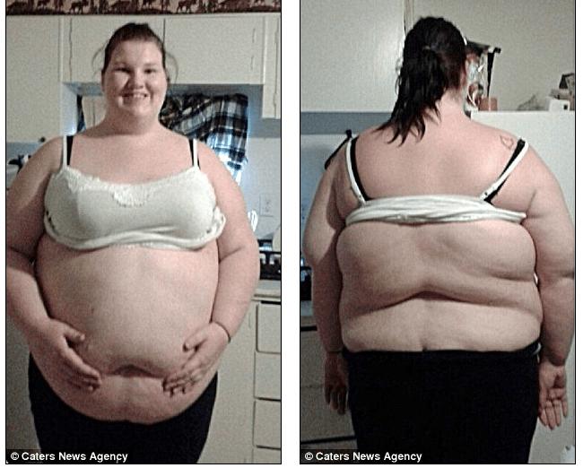 Картинки по запросу Она ела 11 тысяч калорий в день, но вот как она выглядит сейчас — минус 100 кг!