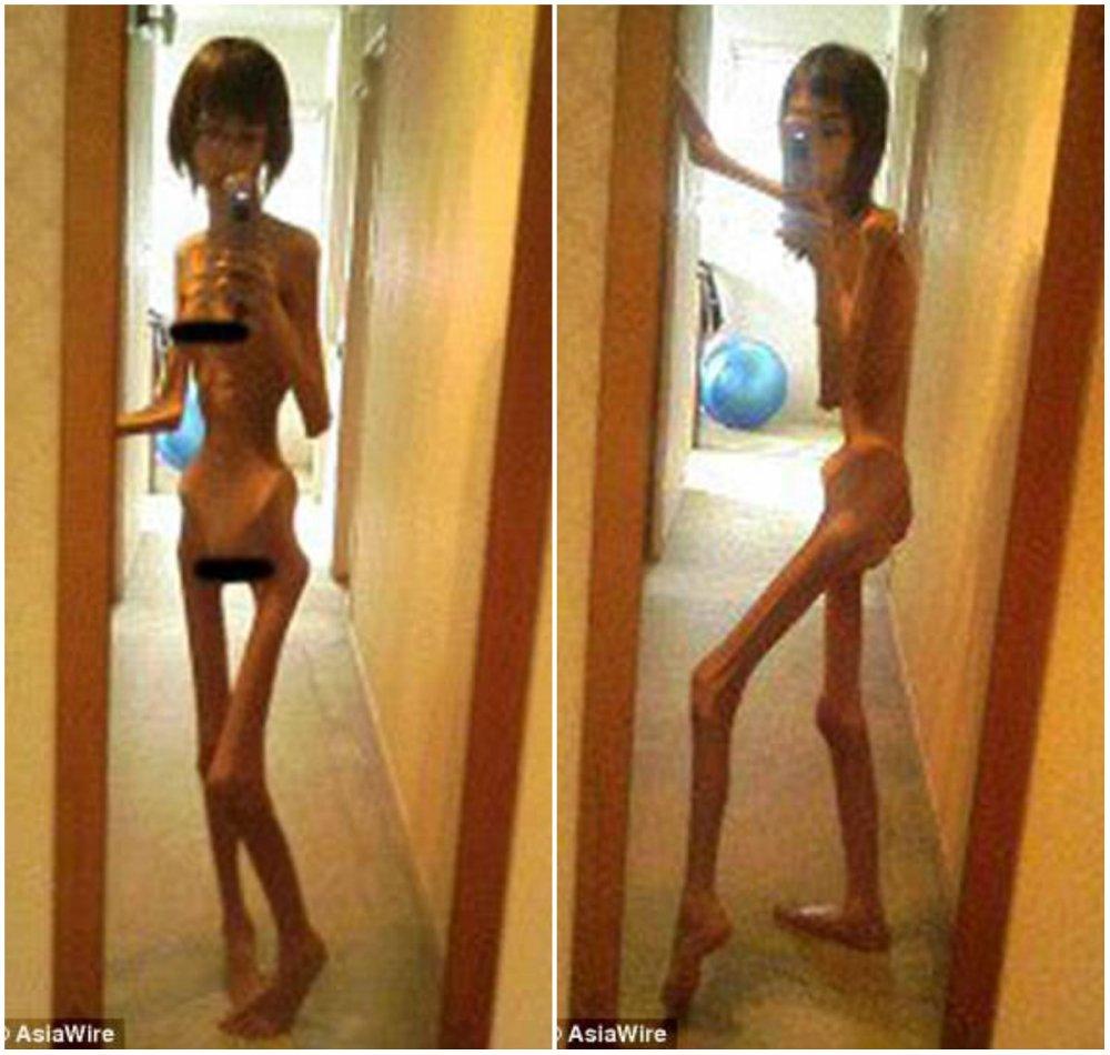 Голодавшая японка шокировала мир фотографиями, когда она весила всего 17 кг