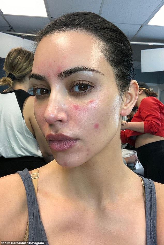 Ким Кардашьян показала брутально честное фото псориаза на лице