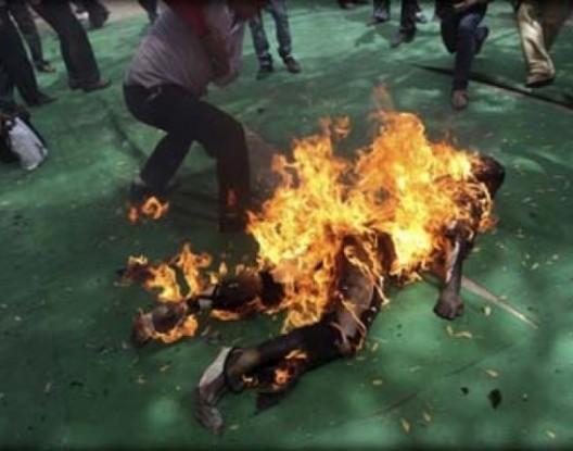 """""""تفحم"""" امرأة حامل أشعلت النار في جسدها"""