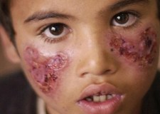 """3548 حالة """"الليشمانيا"""" في المغرب.. ووزارة الصحة تستنفر مصالحها"""