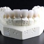 歯医者に行かずに「重曹うがい」で虫歯を治す