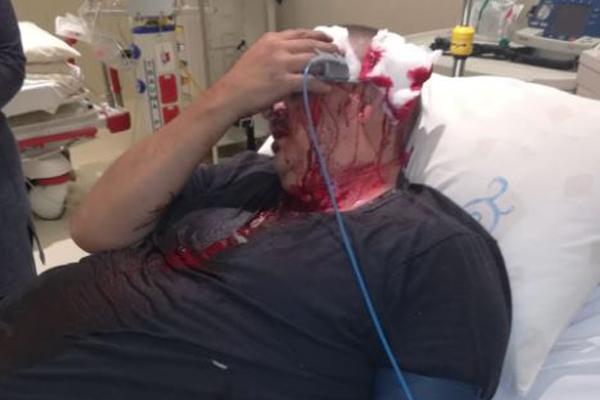 Man hospitalized after violent assault. Photo: oorgrens Veiligheid