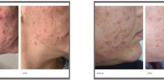Preventing and managing acne