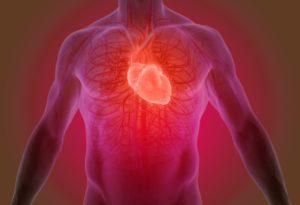 Heartburn vs Heart Attack Symptoms