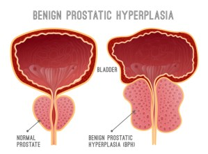 image comparing normal prostate and with bph