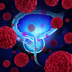 prostate cancer cells attacking the reproductive system