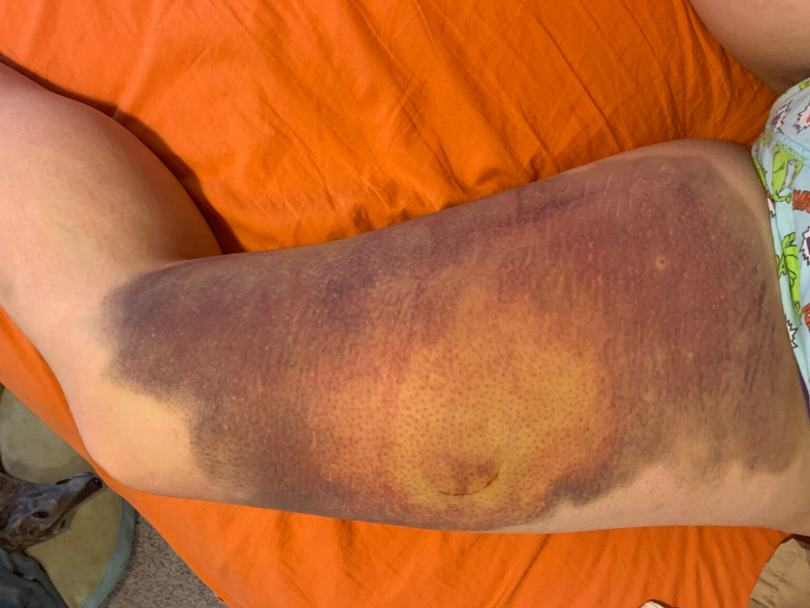 A large purple, green, and yellow bruise takes up the entire thigh of Kel Murphy (photo courtesy of Kel Murphy)