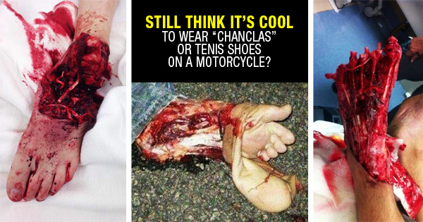 Still think its cool to wear chanclas on a motorcycle?