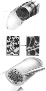 Diagram showing injection into penile erectile tissue