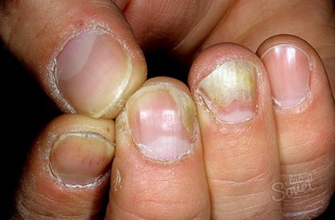 Distalinė nagų onichomikozės nuotrauka