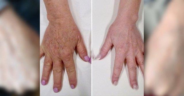 jak przywrócić elastyczność skóry