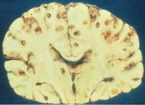 t_solium_cysticerci_in_brain1334850985884