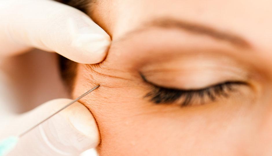 Derriba los mitos del botox