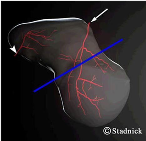 La fractura del escafoides en un portero de futsal (2/3)