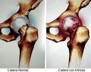 Ejercicios específicos para cojera después de la prótesis (1/6)
