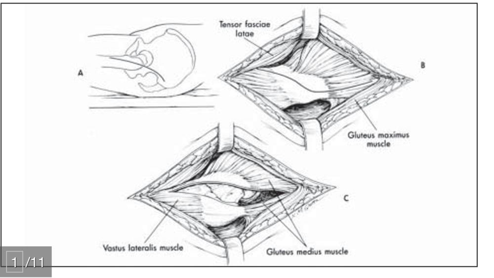 Ejercicios específicos para cojera después de la prótesis (3/6)