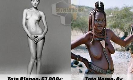 Teta Blanca vs Teta Negra