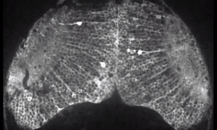 Graban por primera vez en video un pensamiento del cerebro