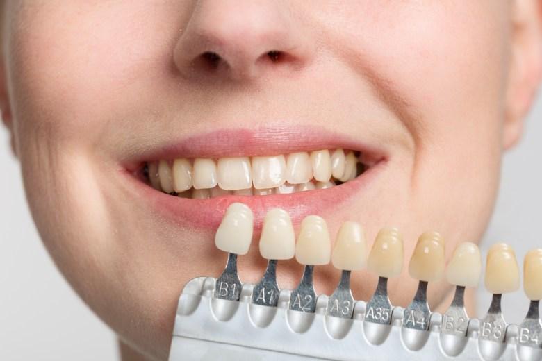 ¿Se considera una patología el cambio de color de los dientes?