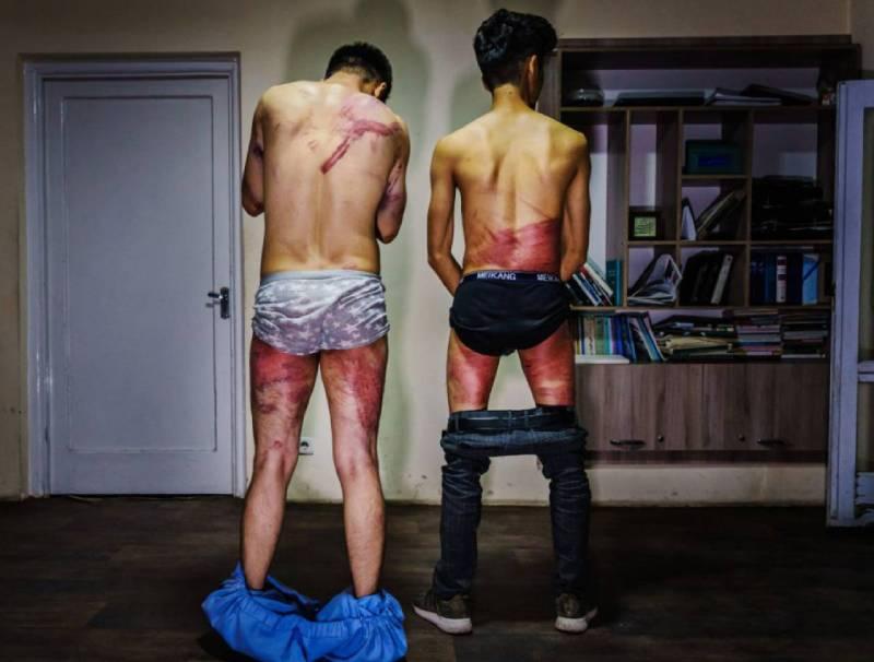 Los periodistas de 'Etilaatroz' Nemat Naqdi (28) y Taqi Daryabi (22) muestran su cuerpo tras la paliza propinada por los talibanes. / MARCUS YAM / LOS ANGELES TIMES (GETTY)