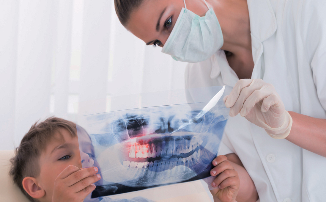 Reasons Your Child May Need An X-Ray