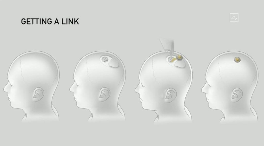 Neuralink Brain-Computer Interface Technology