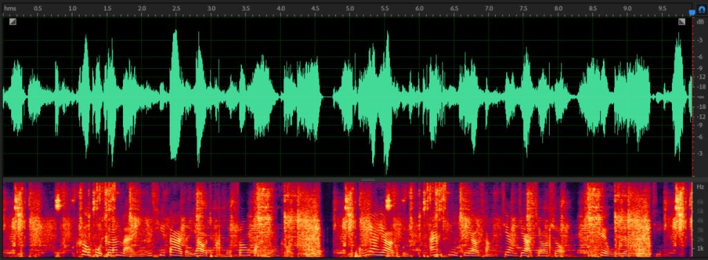 Unopened voice waveform diagram