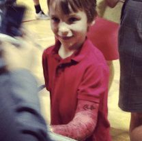"""You can see where Obama signed this boy's cast with """"BO."""""""