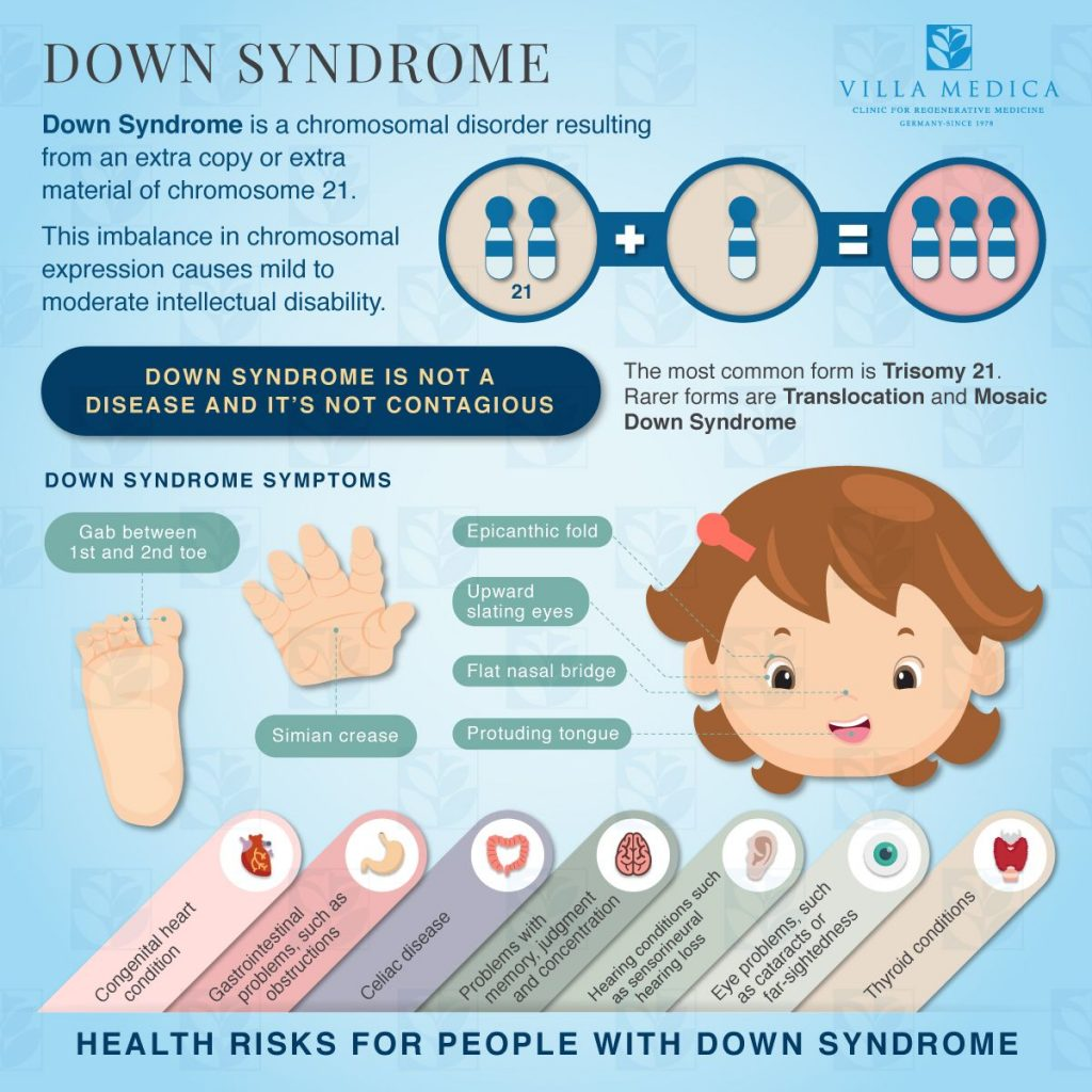 Facts About Down Syndrome Infographic