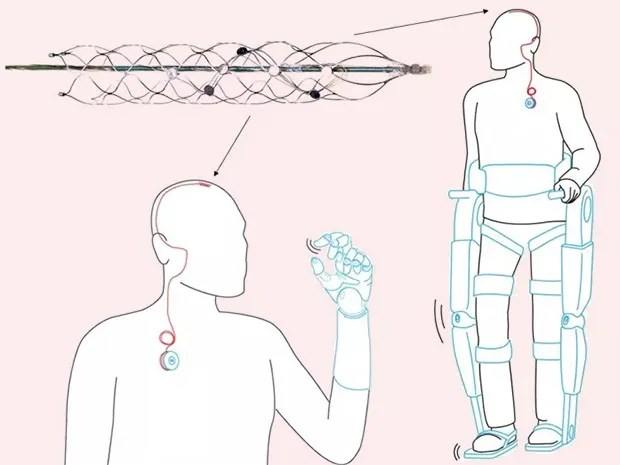 Photo of a cylindrical structure of thin wire mesh, and illustration of a man using the stentrode in his brain to record neural signals and control robotic limbs.