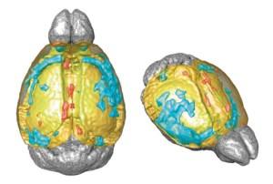 A neuronal 'skeleton' may explain an effect of an autism-linked gene mutation |  Spectrum
