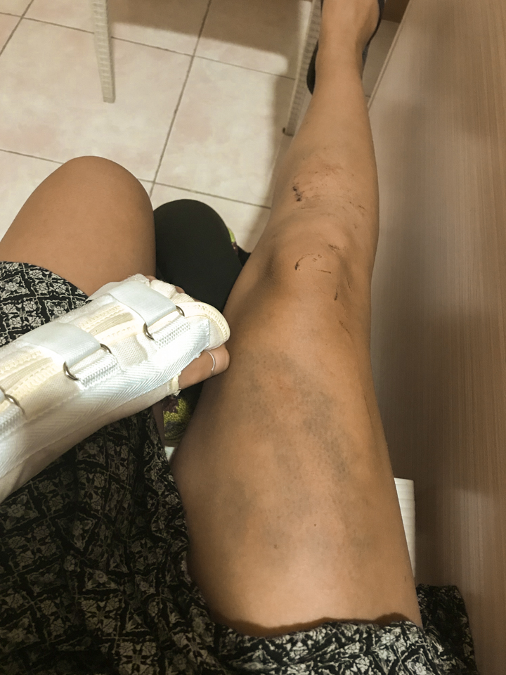 spellbound travels philippines injury