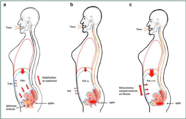 périnée sPhysical physiothérapie vaud