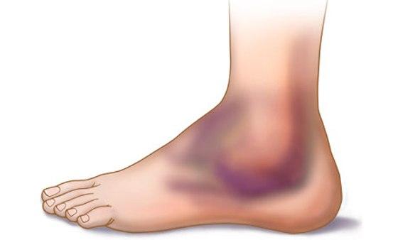 Что делать, если после ушиба ноги осталось болезненное уплотнение. Что делать, после синяка осталась шишка или уплотнение