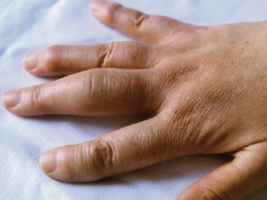Как лечить артрит на пальцах рук фото