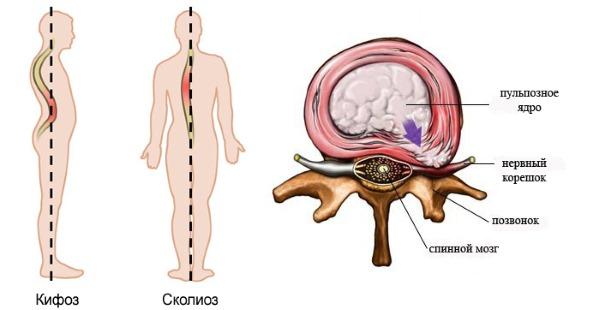 Semak fungsi yang melakukan otot belakang anda.