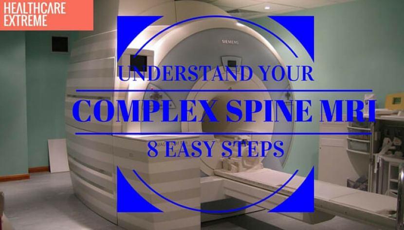 Understand your complex spine MRI