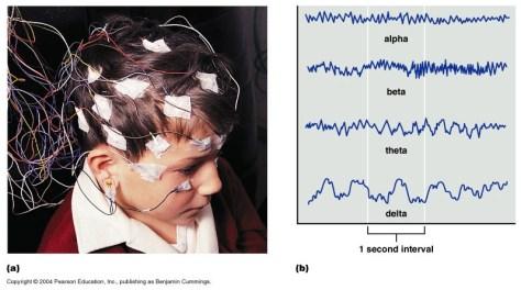 12-20_brainwaves