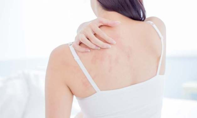 What Are the Best Fabrics for Those Suffering from Eczema?