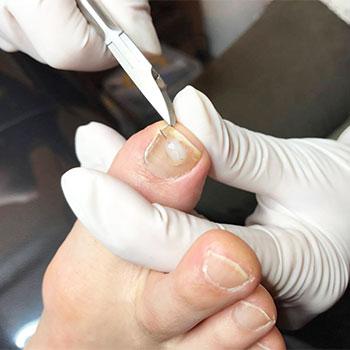 プロの足爪切り