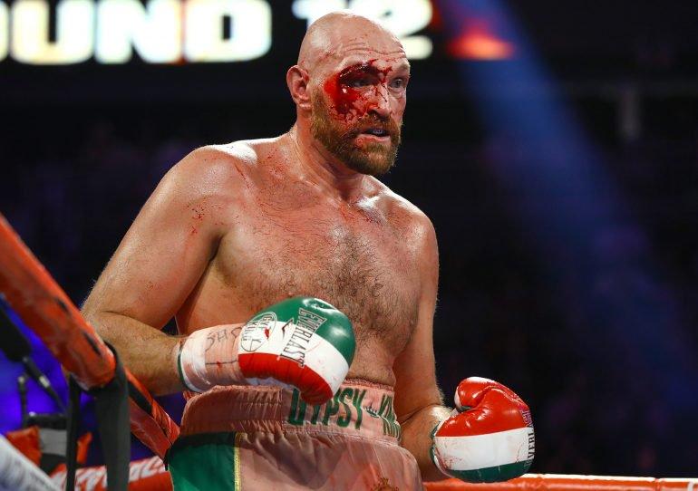Tyson Fury denies hes nervous ahead Wilder rematch