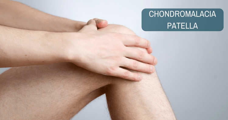 Chondromalacia Patellae Symptoms and Treatment — Sports Medicine Weekly