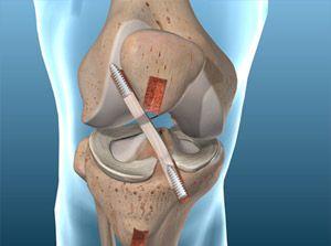Understanding Torn ACL – Bone-Patellar Tendon-Bone Graft Procedure — Sports Medicine Weekly